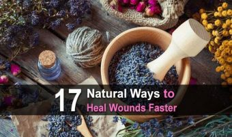 17 Natural Ways to Heal Wounds Faster
