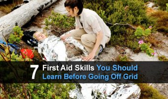 7 First Aid Skills You Should Learn Before Going Off Grid