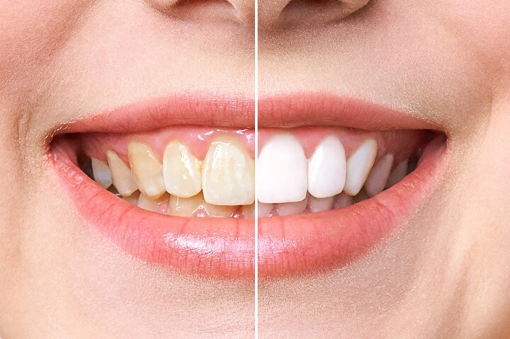 Whitened Teeth Before and After